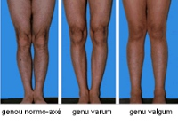 Figure 5 - Knock Knees or Genu valgum